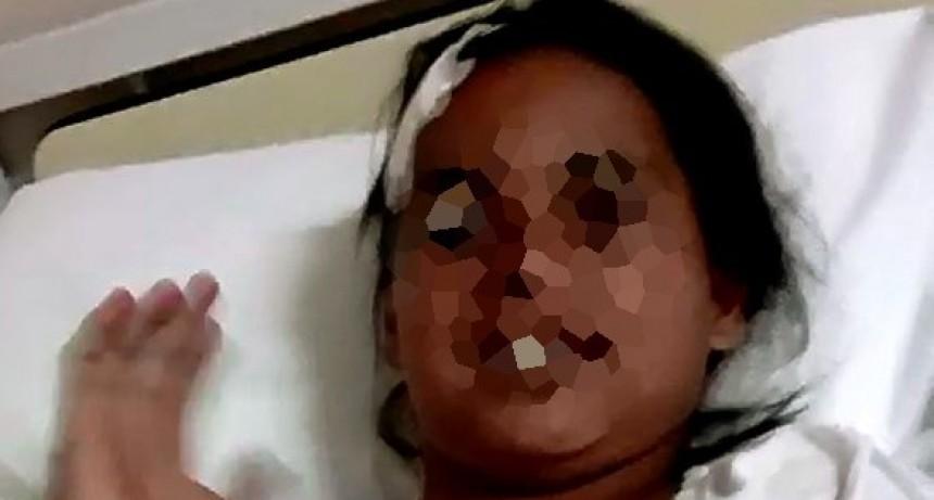 Un perro mordió una niña y hubo que operarla