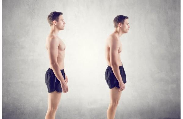¿Cómo podemos corregir los problemas de postura?