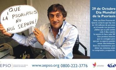 29 de Octubre Día Mundial de la Psoriasis: No la esconda, hable de ella