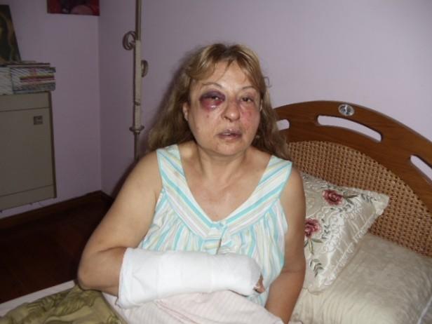 Piden la detención de los acusados de asaltar y golpearon ferozmente a una mujer